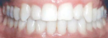 After-Before & After Invisalign Treatment