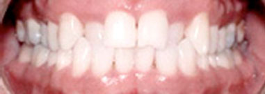 Before-Before & After Invisalign Treatment